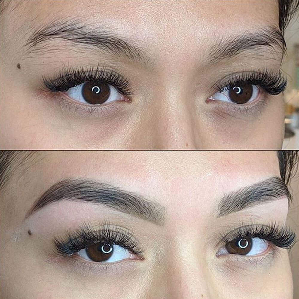 Brow Package